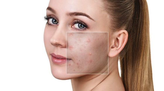 Woman's face before and after treatment